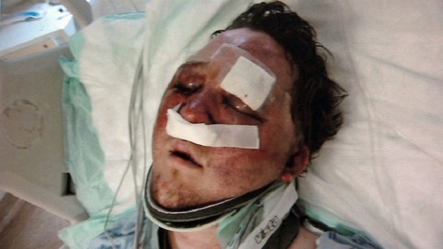 Gay Man Savagely Beaten During Hookup App Encounter (Video)