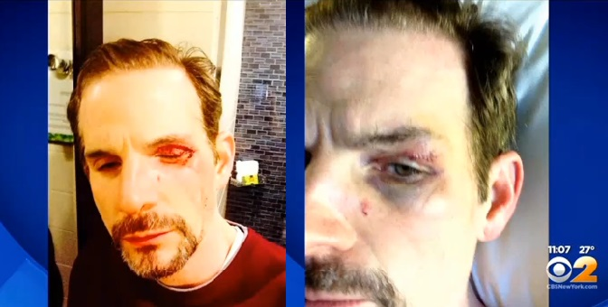 50 New Yorkers Stood By As Gay Man Was Viciously Beaten On Subway Platform
