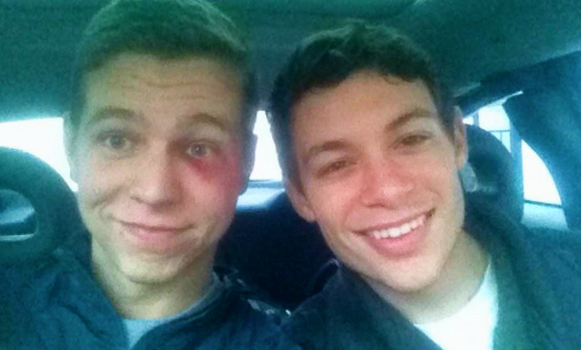 Gay Teen Punched For Kissing Boyfriend Sends Beautiful Message To Attacker